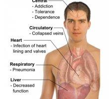Efficiency of noophen in heroin addiction