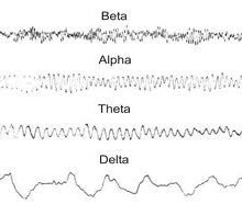 Ladasten versus placebo effect self-evaluated by neurasthenia patients with different EEG alpha rhythm types