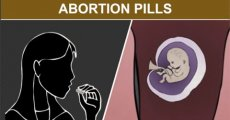 1st Trimester Medical Abortion: Abortion Pills